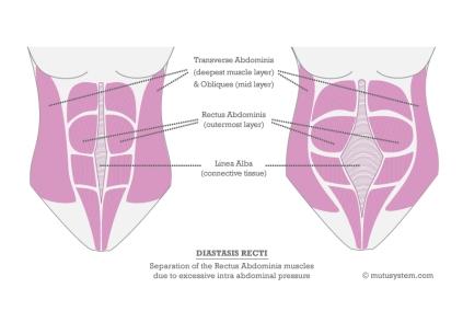 Diastasis-Recti-V3